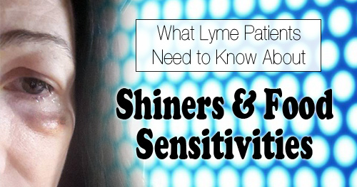 What Lyme Patients Need to Know About Shiners & Food Sensitivities